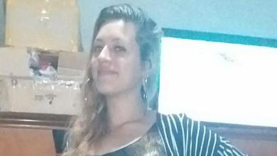 """Photo of Una joven se quemó la cara para ser """"fea"""" y su novio deje de golpearla"""