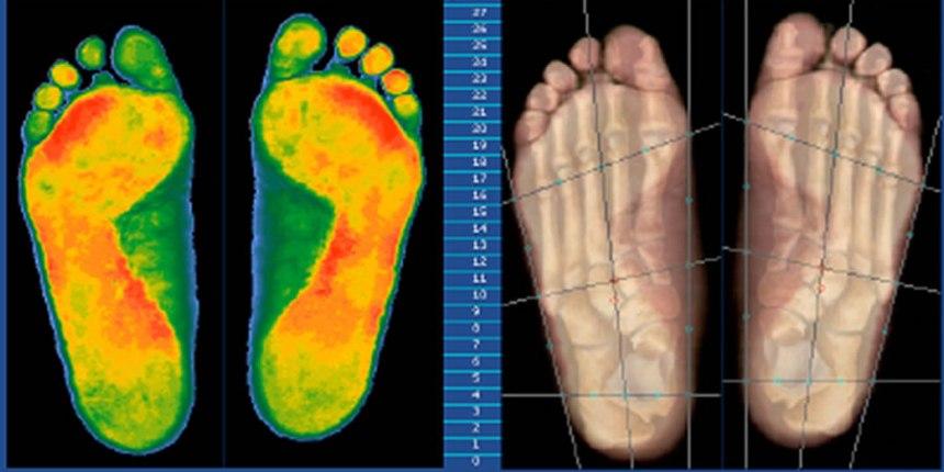Calzado biomecánico para personas con obesidad
