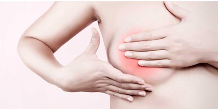 Cáncer de mama: estadísticas y factores de riesgo