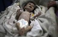 Sahar, la niña que murió de hambre en Siria por la guerra