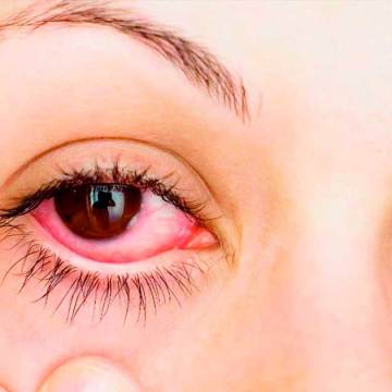 Medidas preventivas para evitar conjuntivitis