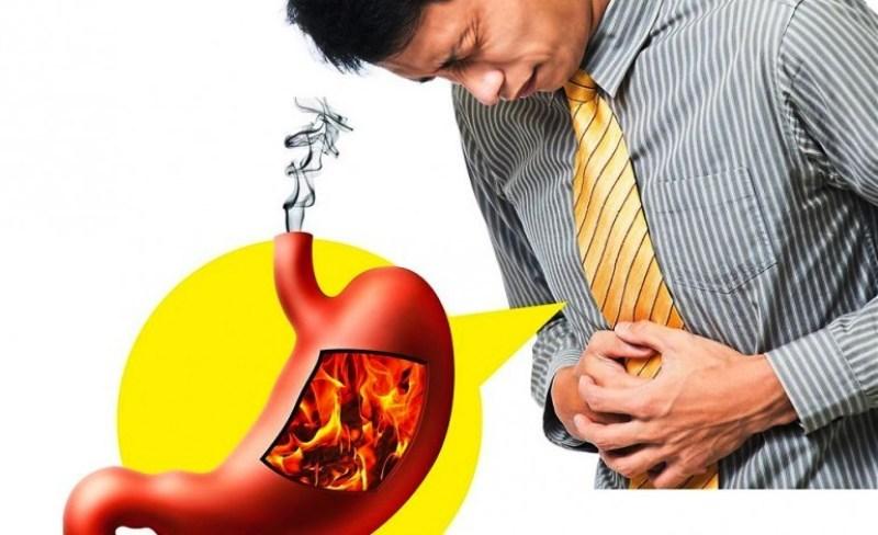 El reflujo gastroesofágico afecta a muchas personas en el mundo.