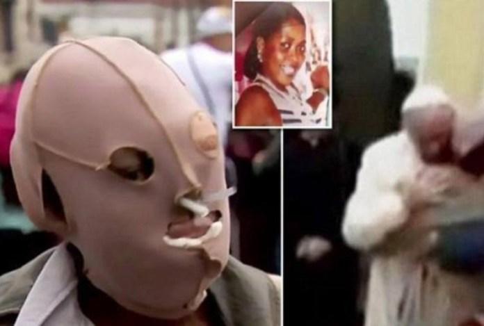 Nel combo la donna con la protezione facciale, l'abbraccio con il Papa e un'immagine della donna prima dell'aggressione con l'acido