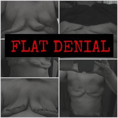 flat denial