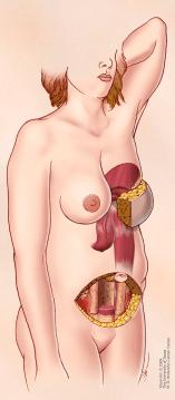 TRAM flap reconstruction illustration