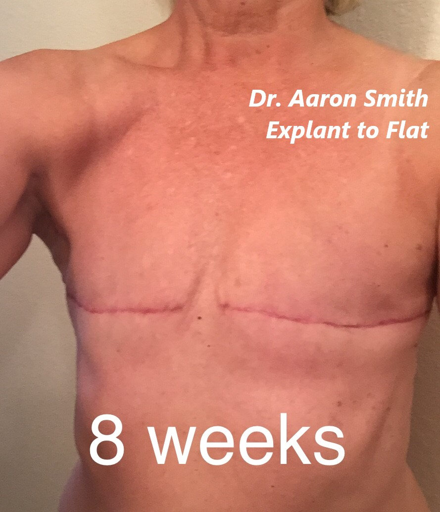 aesthetic flat closure example mastectomy explant breast implant removal