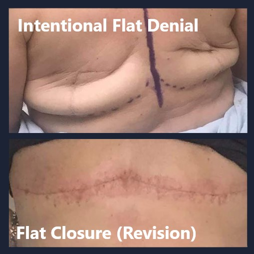 intentional flat denial before and after revision