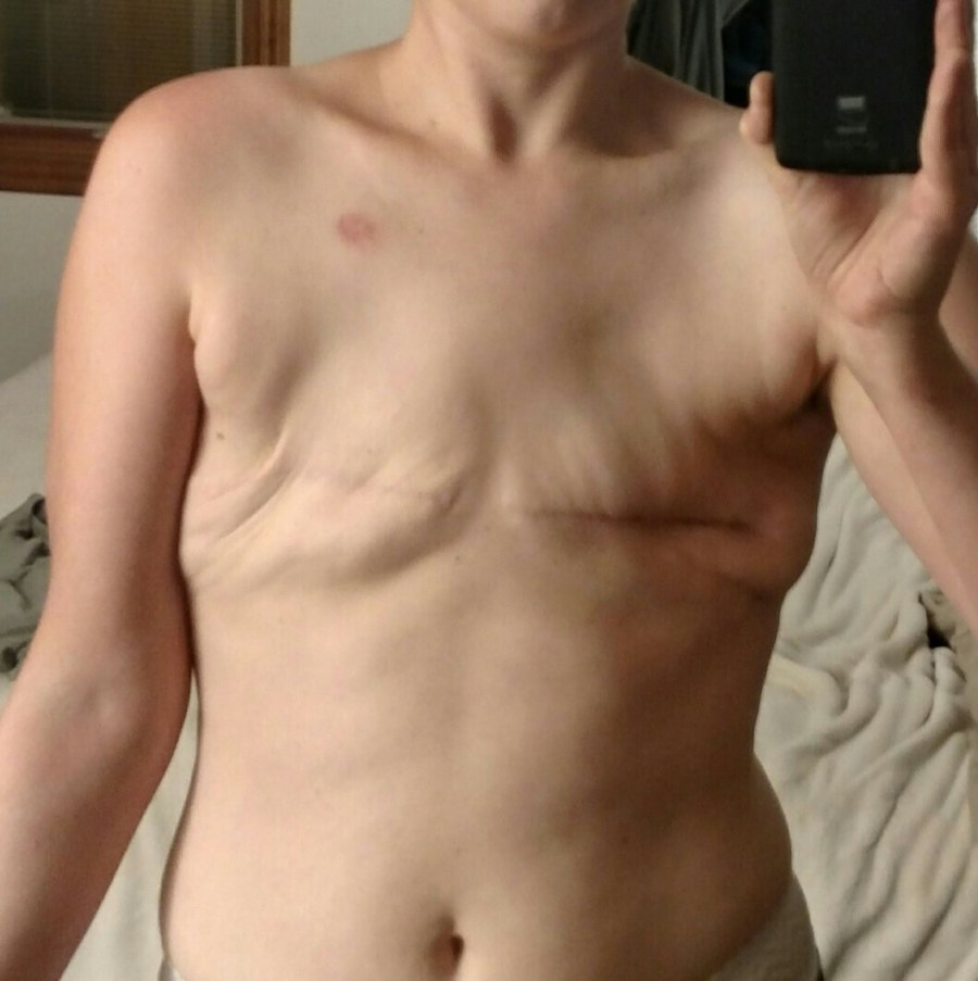 going flat photos flat denial after mastectomy dog ears extra skin consent