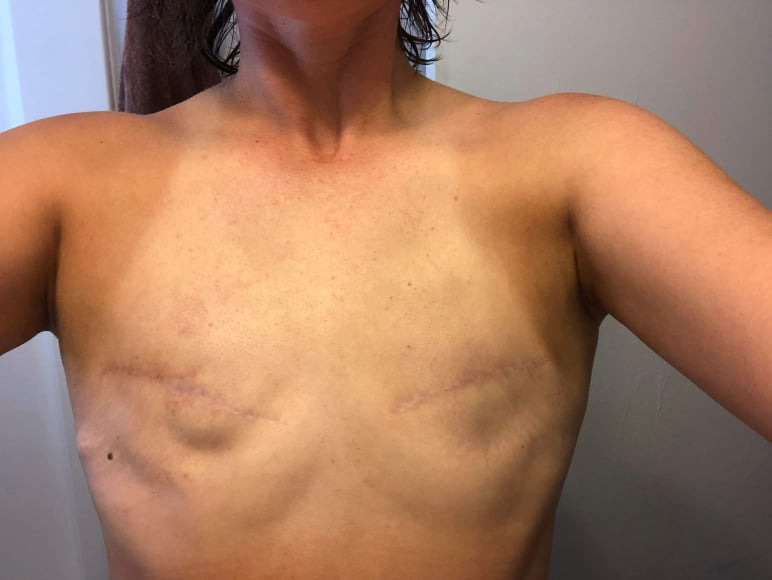 going flat photos aesthetic flat closure revision after mastectomy