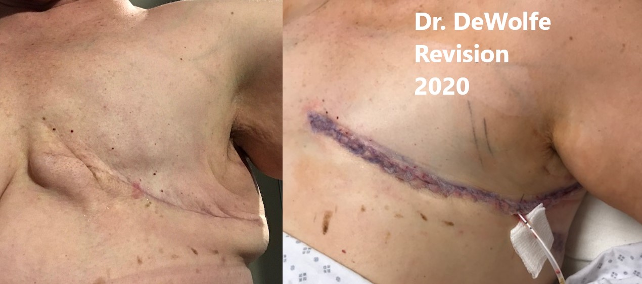aesthetic flat closure after mastectomy example - revision surgery - correcting removing dog ears