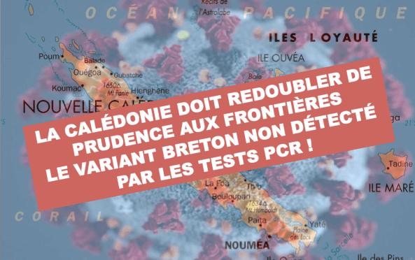 COVID : LE VARIANT BRETON N'EST PAS DÉTECTÉ AU TEST PCR