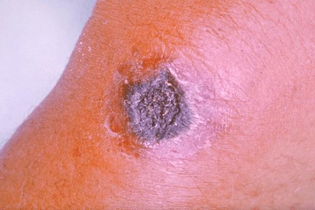 Anthrax skin blister