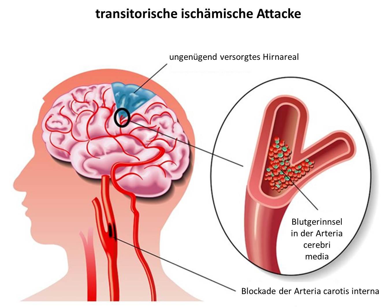 TIA durch verstopfte Blutgefäße in Hals-und Hirngefäße