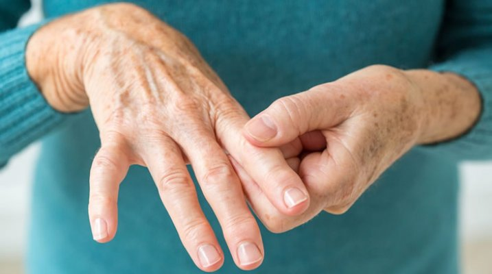 reumatoidni-artritis-1