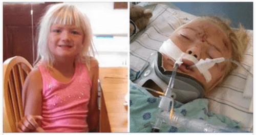 Ее 6-летней дочери ремень безопасности изрезал живот и она призывает родителей использовать автокресла.