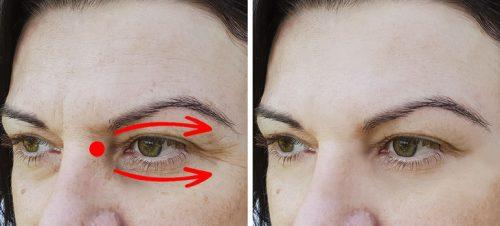 6 советов по уходу за кожей вокруг глаз