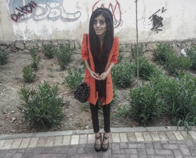 Иранка очень хотела превратиться в Анджелину Джоли, и у нее это не совсем получилось🙈