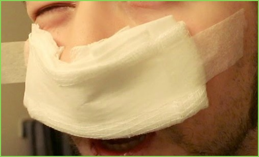 Gauze under nose following surgery.