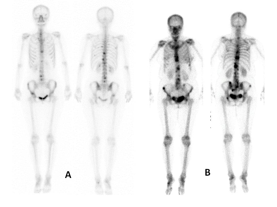Extent of Disease on Initial Bone Scan Predicts Survival
