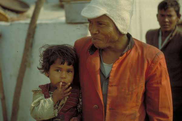 UN health agency launches global strategy to end leprosy