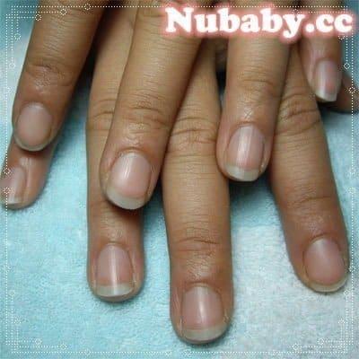 手部保養-硬繭脫皮的手指也能變美 - 妮寶貝-指甲矯正 精油產品