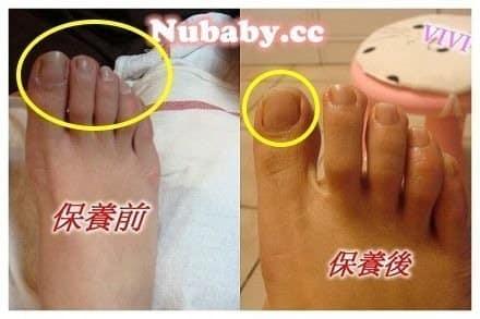 腳部深層保養-乾燥後繭的工人腳