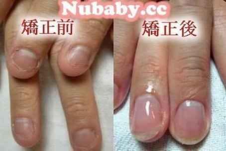 問題指甲處理-男生咬指甲矯正的成功案例