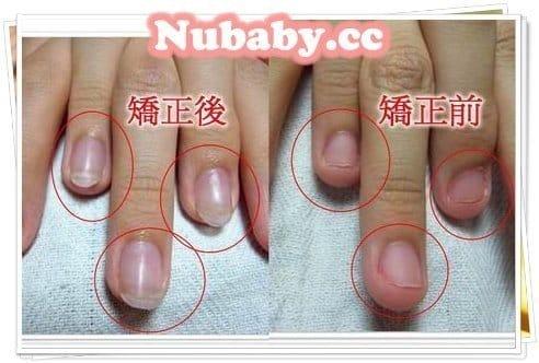 摳咬甲矯正-用水晶矯正甲床外露的指甲