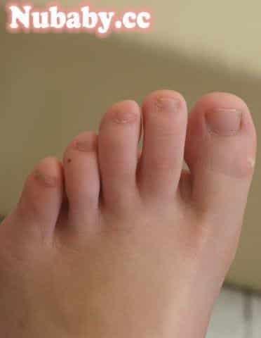 腳部保養-護士也能有健康的腳底與腳趾