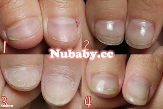 指甲矯正-被摳咬的超小指甲成長史