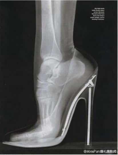 足部深層保養-解決腳跟變黃的厚繭