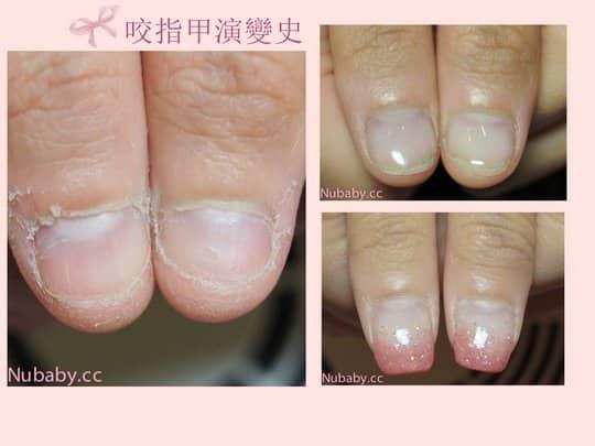 咬指甲矯正-指緣乾燥+撕皮到有血痕