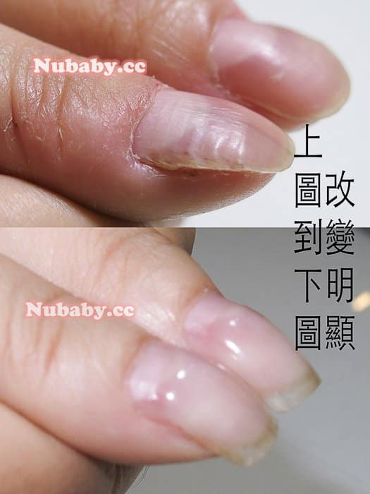 摳咬拇指指甲矯正-拇指變形終於變健康