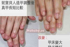 201502501 - 撕指甲 撕咬不停-泰北高中小蓉
