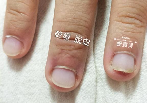 nail20170515 1 - 手部硬繭處理保養--矯正指甲的重點