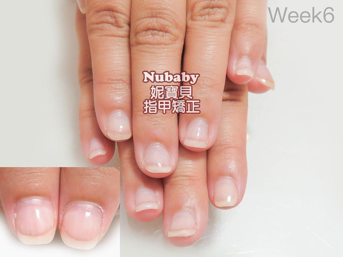 指甲問題解決-5個月處理 甲肉萎縮 扇形 飛甲 - 妮寶貝指甲