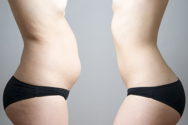 coolsculpting facts for weight loss