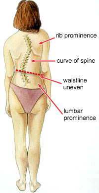 Scoliosis, Bent Spine, Back Pain, Back Ache