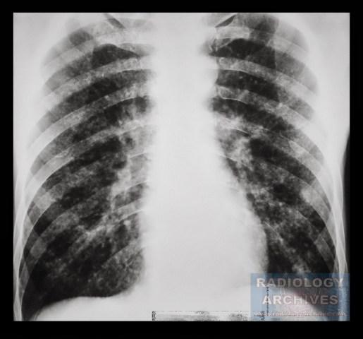 Κεχροειδής Φυματίωση Miliary Tuberculosis
