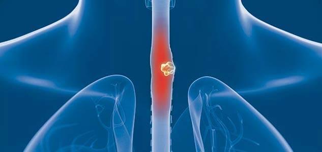 Ο καρκίνος του οισοφάγου, θεωρείται εξαιρετικά επιθετικός καθώς προκαλεί σε σύντομο χρόνο μεταστάσεις στους λεμφαδένες.