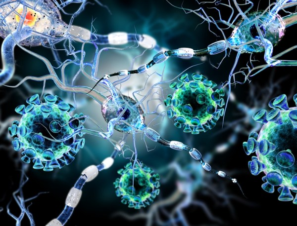 The antibody aducanumab reduces Aβ plaques in Alzheimer's disease