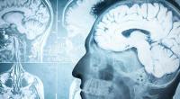 Εγκέφαλος MRI