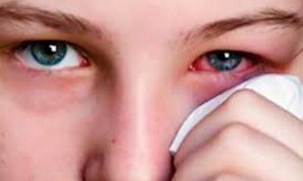 Η σοβαρή covid-19 χτυπά και τα μάτια, τι βρήκαν Γάλλοι ερευνητές