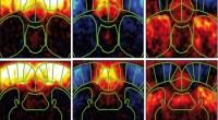 functional ultrasound imaging