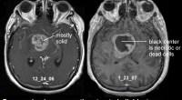 Πολύμορφο γλοιοβλάστωμα (GBM) - προοδευτική νόσος