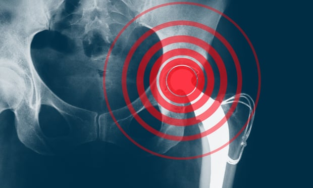 X-ray showing a hip replacement. In some cases, implants had not been tested in patients before being allowed on to the market. Composite: The Guardian design team / Voisin/Phanie/Rex Features