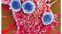 Απεικόνιση, με ηλεκτρονικό μικροσκόπιο, των μπλε ανοσοκυττάρων τη στιγμή που επιτίθενται κατά καρκινικών κυττάρων.