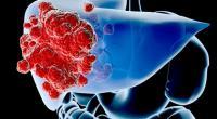 Ηπατοκυτταρικό καρκίνωμα (HCC)