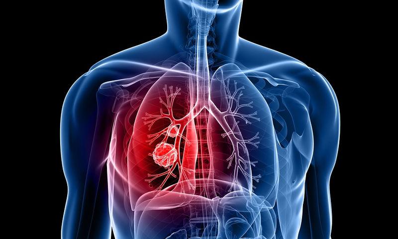 Καρκίνος πνεύμονα: Εξέταση αίματος θα μπορούσε να δώσει ελπίδα για έγκαιρη διάγνωση του