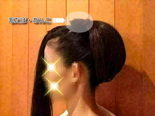 ウイッグを使った着物の髪型・頭頂部にボリュームを出す方法